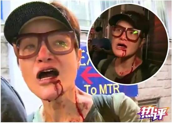 香港艺人马蹄露被袭击 央视揭事件背后的恐怖隐线