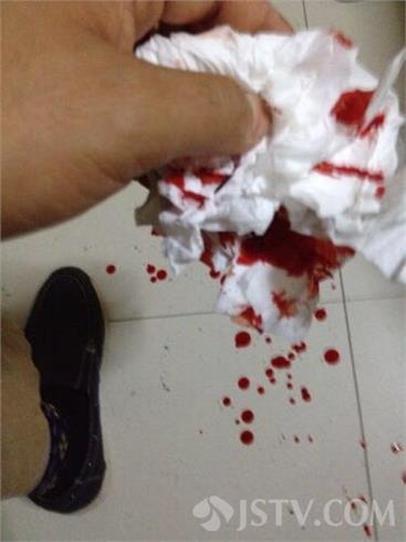 手指背上有血斑是什么问题图片